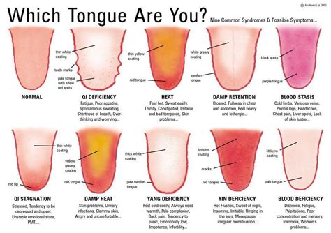 what color should my tongue be doctor of traditional medicine vancouver area