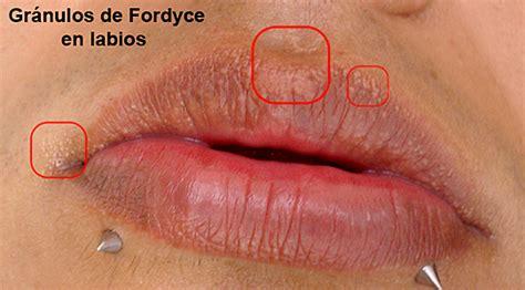 imagenes de manchas blancas en la boca manchas o granos de fordyce dermatologo net