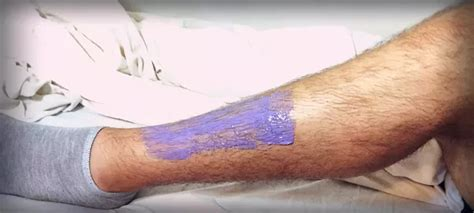 losing leg hair on men what are some ways to reduce itching caused by growth of