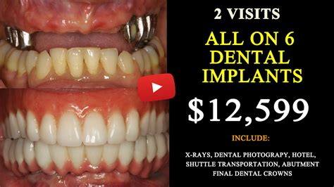 for dental implants in mexico all on 4 dental implants mexico april 2018 8 500