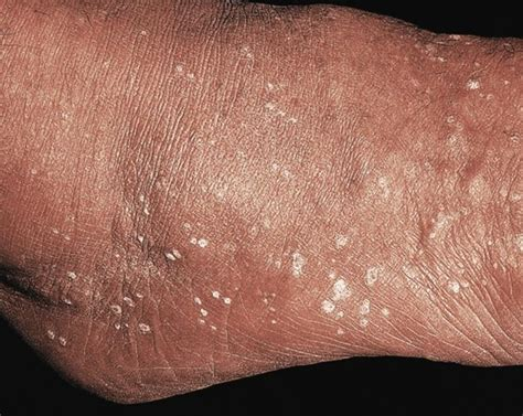 wart on leg flat warts on legs pictures photos