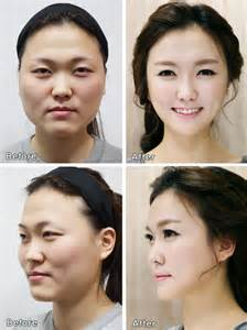 Makeup Schools New York Plastic Surgery With Asian Women We Ve Moved Join Us At Youthvoices Live