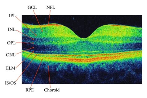 oct sectioning the diagnostic function of oct in diabetic maculopathy