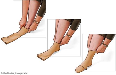 what to put in stockings compression stockings for life geogypsy