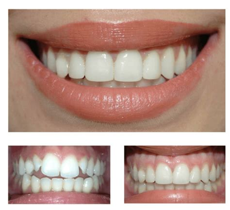 composite veneers we compare safety durability