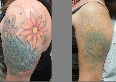 clear out ink laser tattoo removal in henderson clear