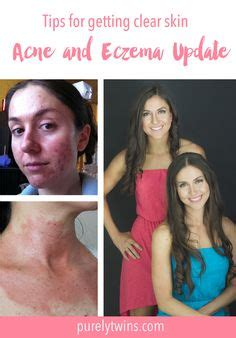 Tips Acne Skin Clear Methods by 1000 Images About Eczema Healing Tips On