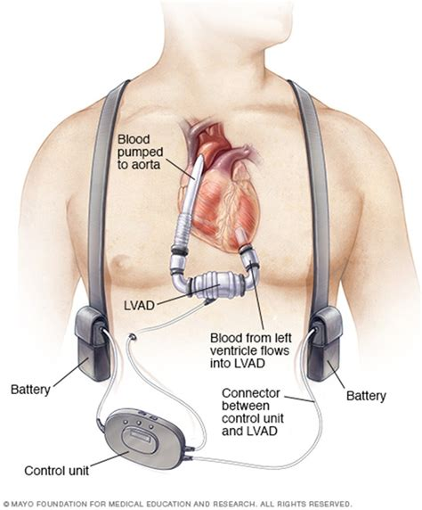 PV Card: LVAD Complications Lvad Clinic
