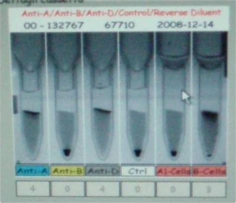 test di coombs diretto lezioni di immunoematologia test di agglutinazione con