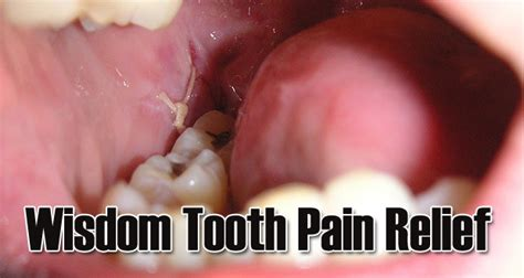 15 home remedies for instant wisdom tooth relief