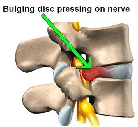 Best Mattress For Disc Problems by Herniated Disc Archives Chiropractic Physicians At