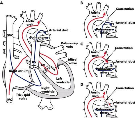fetal circulation diagram schematic of fetal circulation umbilical cord circulation