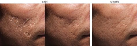 bellafill for results of acne scars don t just live with it moorea bodysense clinique