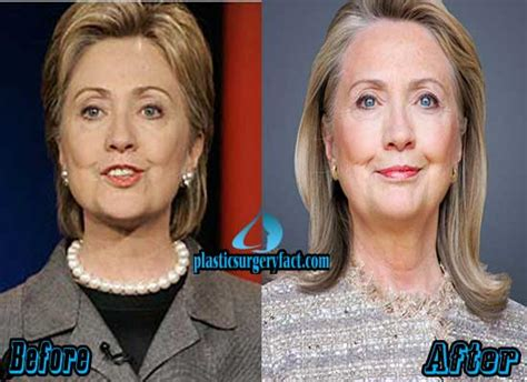 did hillary clinton have plastic surgery 2015 hillary clinton plastic surgery 2015 hillary clinton