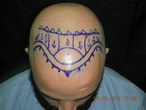 hair transplant jeddah hair transplant riyadh jeddah mecca medina dammam ksa