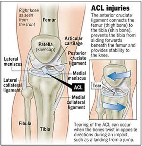 Interior Knee Ligament A Patient S Guide To Anterior Cruciate Ligament Injuries