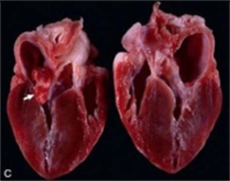 cardiomyopathy in dogs hypertrophic cardiomyopathy