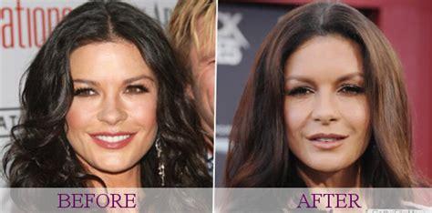 catherine zeta jones surgery celebrity catherine zeta jones plastic surgery photos