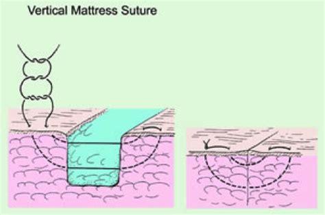 Running Vertical Mattress Suture primary wound closure