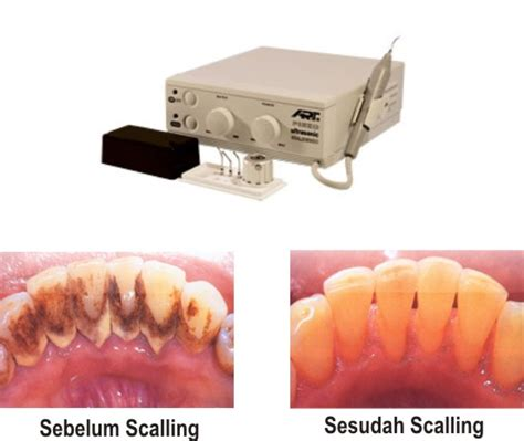 Membersihkan Karang Gigi menangani kalkulus atau karang gigi pembersihan karang