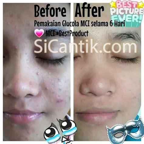 Collagen Mci testimoni dan review glucola drink mci mgi asli