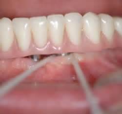zahnseide vorher oder nachher prothesenreinigung richtige pflege der zahnprothese