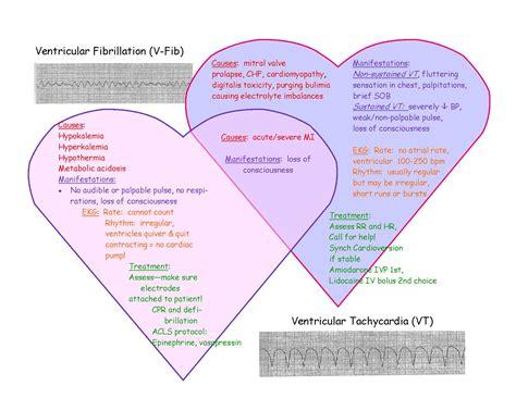 atrial fibrillation diagram pictures of dysrhythmias