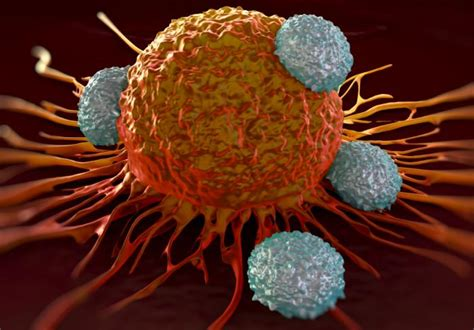 Fred Hutch Seattle Ovarian Cancer Effective Immunotherapy Steps Closer With