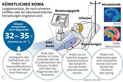 wann fã llt ins koma medizin wie gef 228 hrlich ist das k 252 nstliche koma die welt