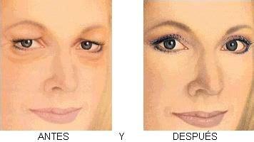 imagenes de ojos inflamados gu 237 a de la cirug 237 a de p 225 rpados ca 237 dos