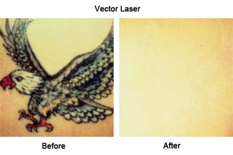 laser tattoo removal liverpool laser removal liverpool by skinnotion