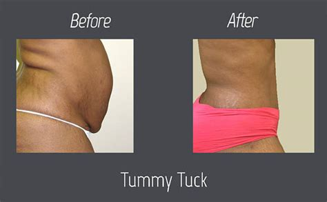 when can you have a tummy tuck after c section tummy before and after pictures nubody concepts