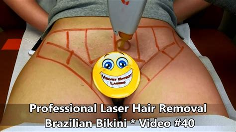 laser brazilian hair removal photos professional laser hair removal brazilian bikini video