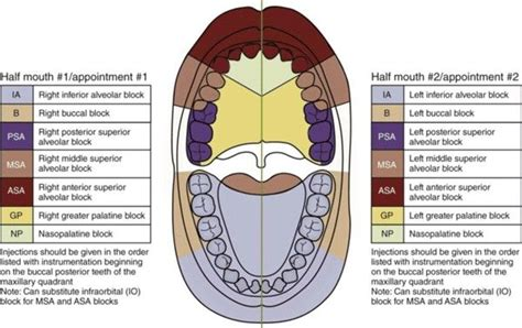 sextant meaning in dentistry 20 best dental images on pinterest dental teeth and