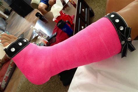 Decorate Your Cast by New Bling Pink Cast Decorated Leg Cast S Pins