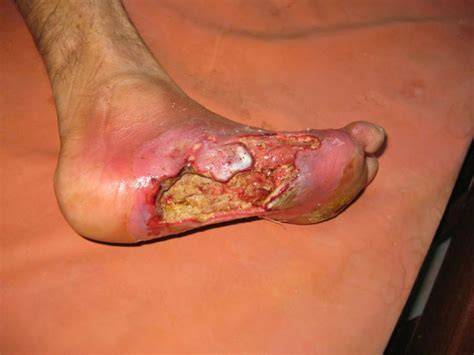 infected wound infected wound maggots search infections warning really graphic