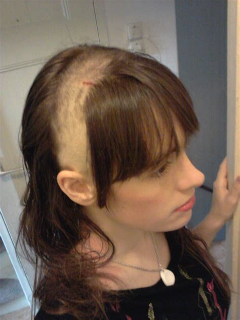 long hair bacl bald front hairstyles how not to have an undercut siphon and reservoir