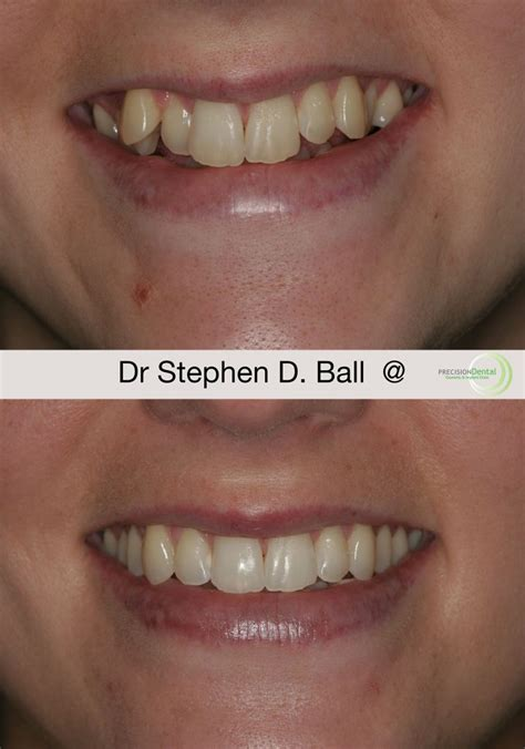 south yorkshire teeth straightening invisible braces