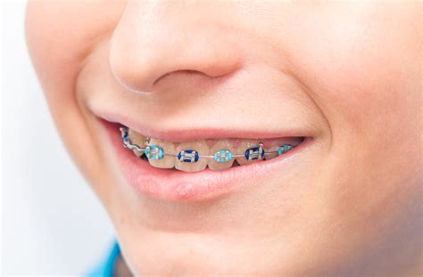 our blog dream orthodontics south surrey bc orthodontics for children with dr ritucci