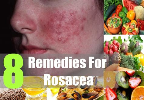 8 home remedies for rosacea treatments cure