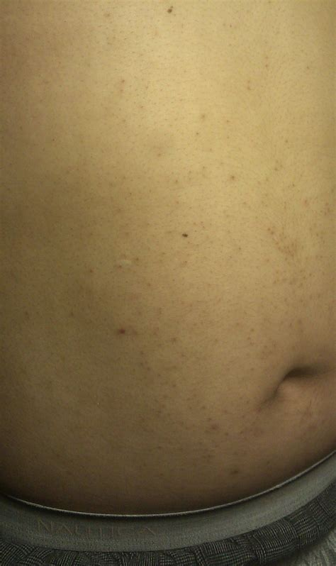 pimples on belly acne on stomach and back or is it pih back neck acne forums