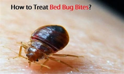 how to stop bed bugs from biting how to treat bed bug bites