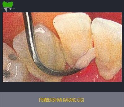 Pembersihan Karang Gigi Di Rumah Sakit perawatan jakarta smile