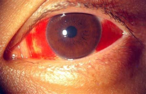 eye injury eye specialist centre eye