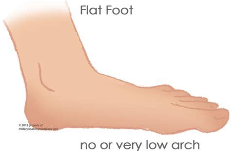 slew foot walking flat feet in adults adult aquired flat foot ivanablish