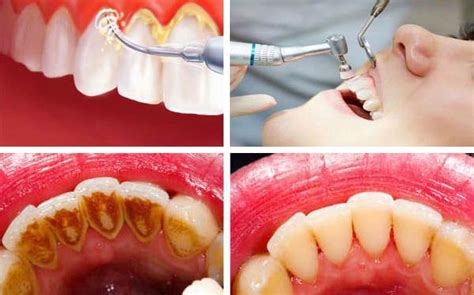 Pembersihan Karang Gigi Di Dental Pembersihan Karang Gigi Dan Stain Dengan Teknologi Terbaru