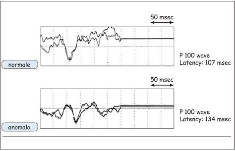 pev pattern reversal 2 c valutazione neurofisiologica riabilitazionereumatologica