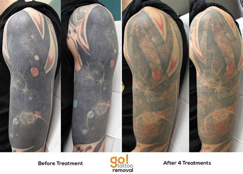 full sleeve tattoo removal after 4 laser removal treatments this sleeve is