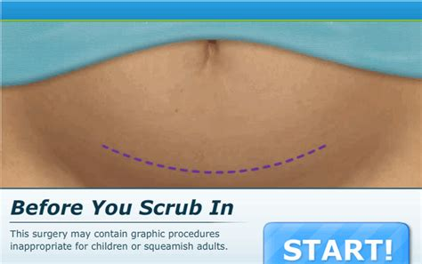 c section games online doctor games online 187 cesarean section