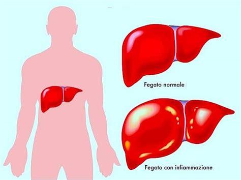 alimentazione per fegato ingrossato fegato ingrossato dieta disintossicante depurarsi in